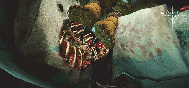 W MK X gracz ma dostęp do super ciosów X-Ray - Specjalne zagrania X-Ray - System - Mortal Kombat X - poradnik do gry