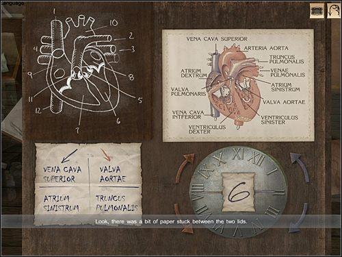 A zatem na recepcie przy niebieskiej strzałce widnieje napis: VENA CAVA SUPERIOR - [Opis przejścia] London Hospital, 12 września 1888 - Sherlock Holmes kontra Kuba Rozpruwacz - poradnik do gry
